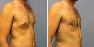 Elimina la ginecomastia (senos grandes hombres)