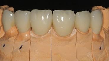 Coronas,ind,sobre implantes