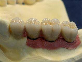 Laboratorio de prótesis dental